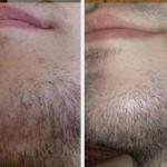 рост бороды ЧЕРЕЗ 1 МЕСЯЦ