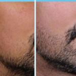 результат роста бороды