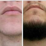 борода через 2 месяца!
